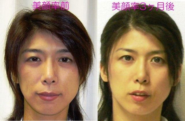 『美顔率』before-after